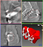 3D c-arms image of heel bone