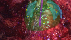 Augmented Reality visualization during laparoscopic prostatectomy